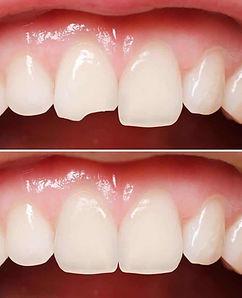 Chipped_Cracked_Broken_Teeth-2.jpg