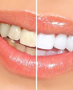 teeth-whitening-1024x732.jpg