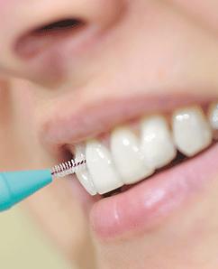 DentalBrush_W1611_ts530423866.png