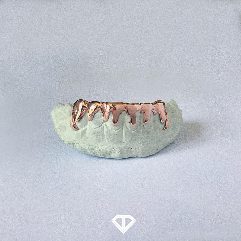 14k Rose Gold Dripping Set