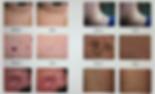 Skin-I-846x515.png