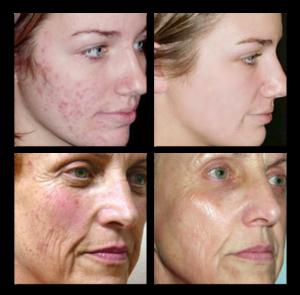 Skin-Rejuvenation-IPL-300x295-Copy.png