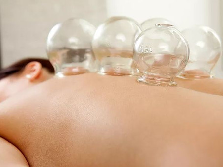 Cupping Does More Than Relieve Muscle Pain and Tightness
