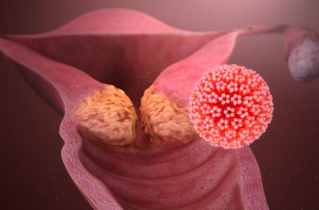 Researchers in Mexico Eradicate Human Papilloma Virus