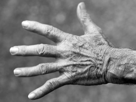 Acupuncture found Effective for Rheumatoid Arthritis Relief