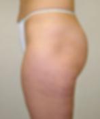 VelaShape III, fat reduction, cellulite reduction