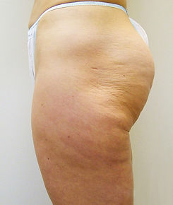 VelaShape III, fat reduction, cellulite reduction