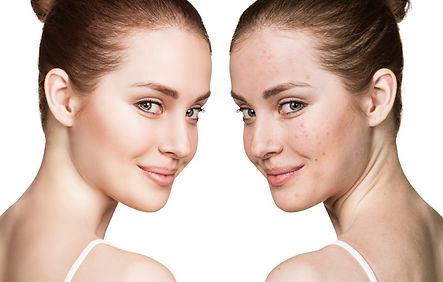 acne-facial.jpg