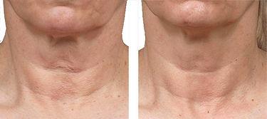 laserskintightening_neck