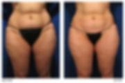VelaShape, fat reduction, cellulite reduction