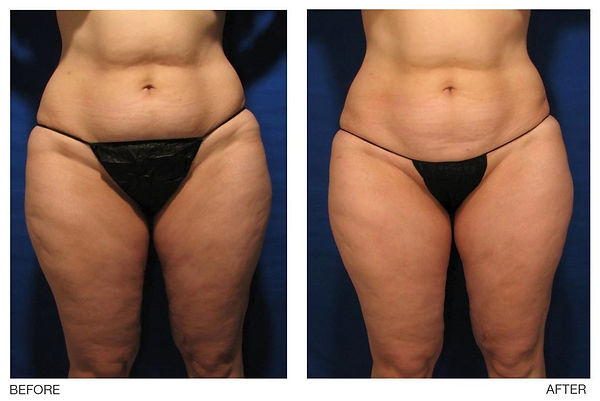VelaShape, fat reduction, cellulite reduction