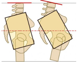 The one little bone that might be a big pain in your ***