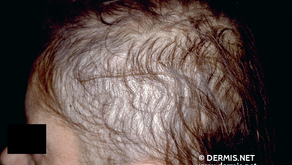 Alterações Dermatológicas Após Cirurgia Bariátrica