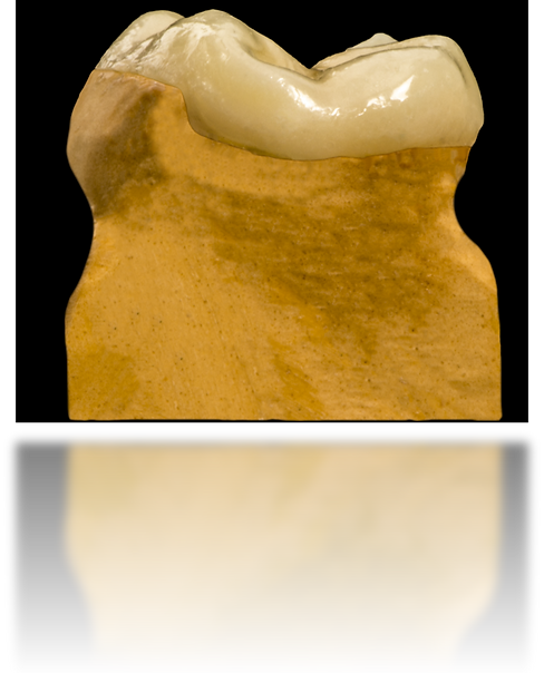 DSC_0035-ceromeroreflexi.png