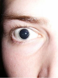 Dialated Pupils.png