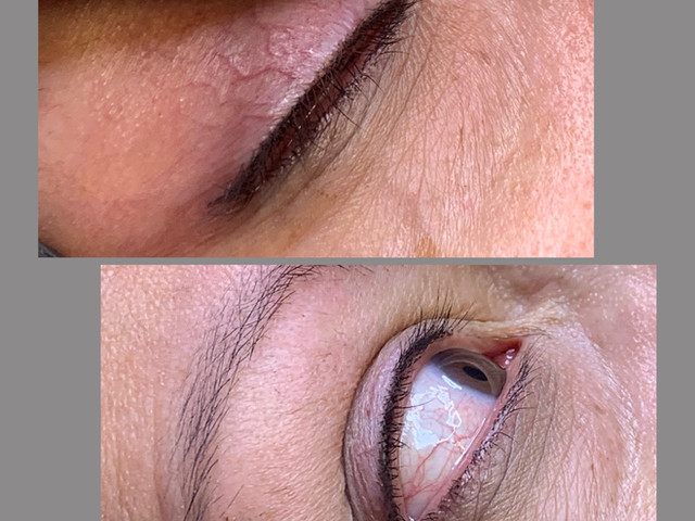 Eyeliner (lash line)