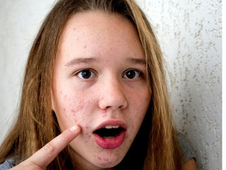 TEENAGE SKIN CARE – NATURAL SOLUTIONS FOR BLEMISHES