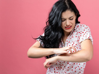 BITES & STINGS: HOW TO TREAT THEM NATURALLY