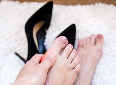 Bunions - A Burning Pain!