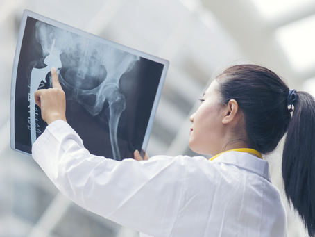 OSTEOARTHRITIS OF THE HIP AND KNEE – PART 1