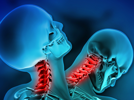 RESOLVING WHIPLASH INJURIES  PART 2 – BIOMECHANICS (continued)