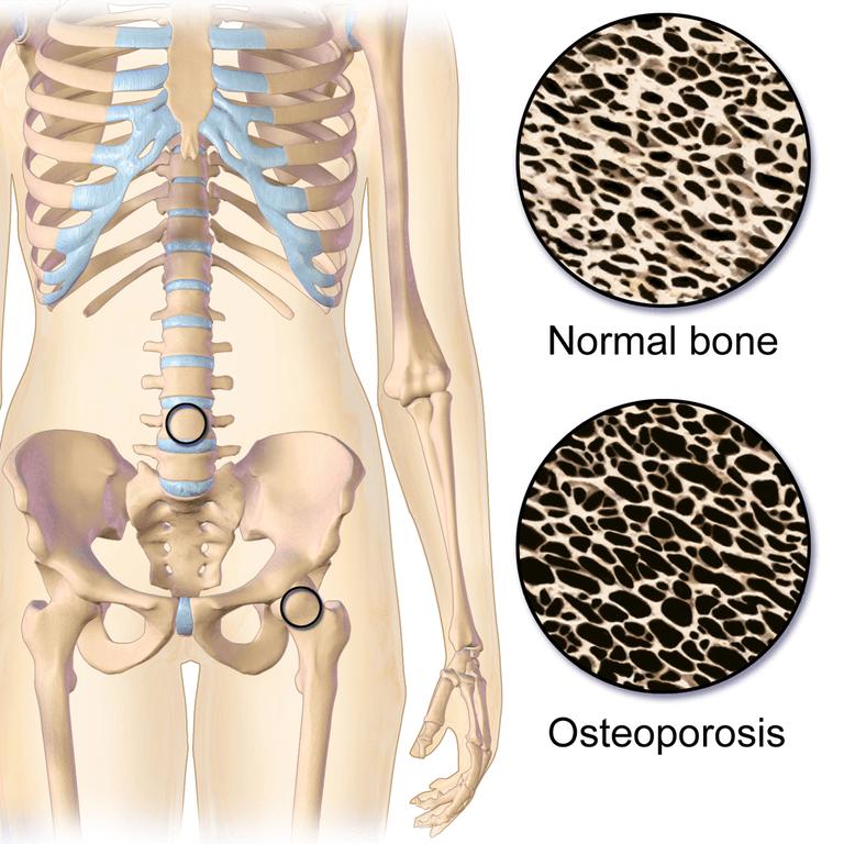 מבנה השלד במצב נורמלי ובמצב של אוסטאופורוזיס