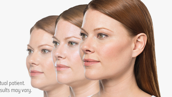 It's time to update your OTHER profile with Kybella!