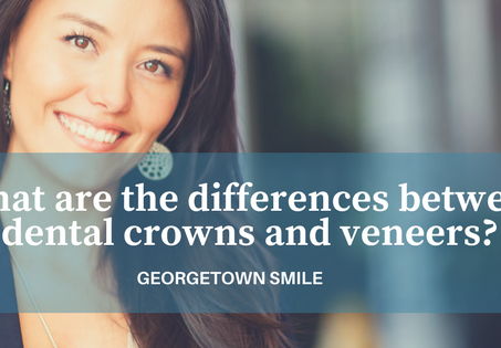 What are the differences between dental crowns and veneers?