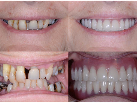 What is a Hybrid Denture?
