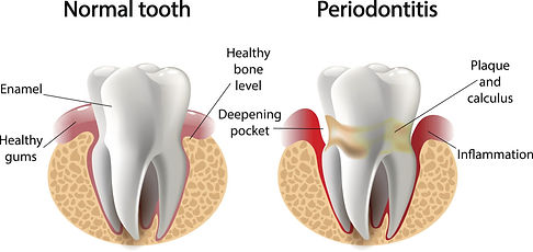 periodontist.jpg