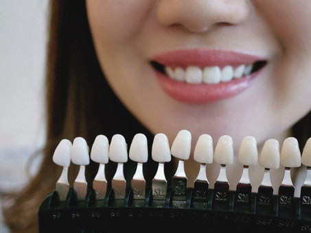 What are the different types of teeth Whitening?