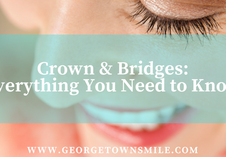 Crown & Bridges: Everything You Need to Know
