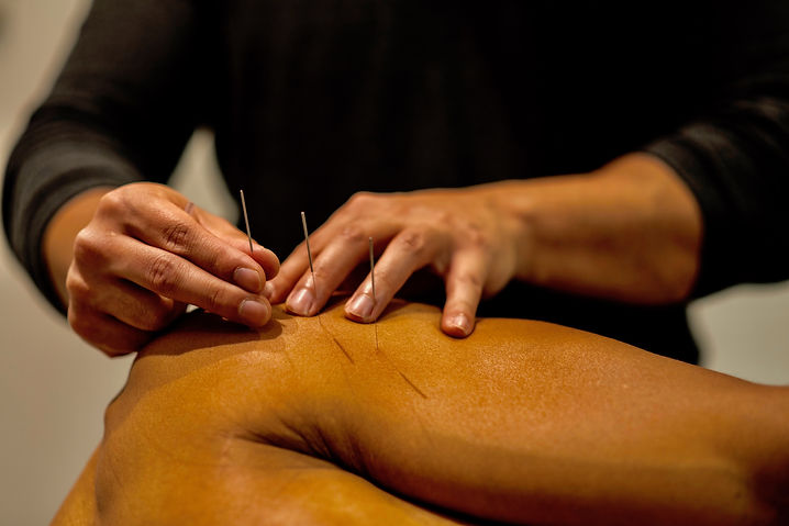Physiotherapist using acupuncture to treat a shoulder injury
