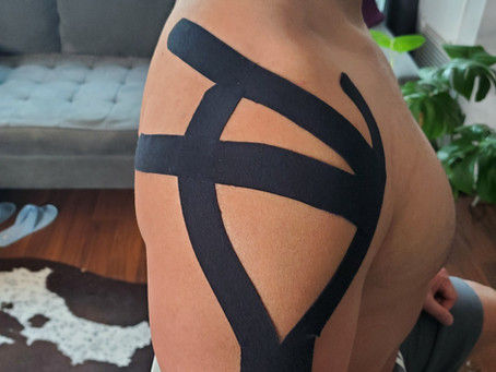 Taping Shoulder for Pain Relief