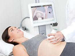 The ultrashape machine experiece