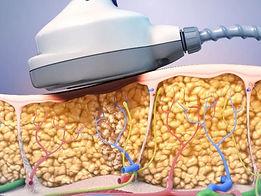 Ultrashape fat reduction image