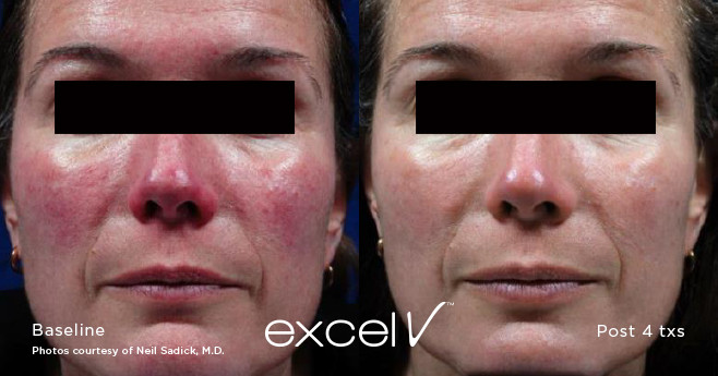 Excel V laser treatment before and after