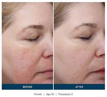 skinpen before after 3.png