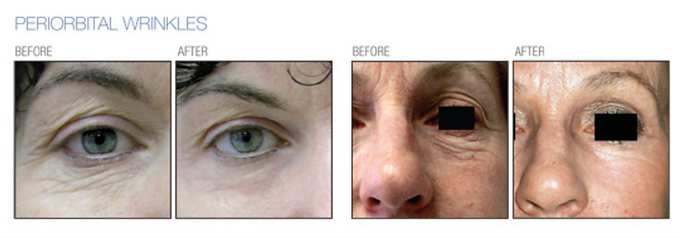C02 laser wrinkles before and after