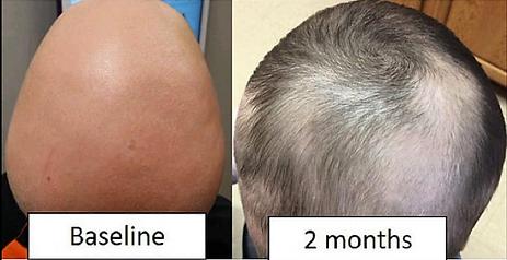 Pedatric Alopecia Before