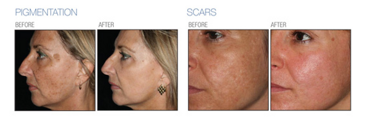 CO2 laser before ad after pigmentation and scars