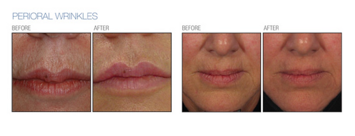 c02 wrinkles before and after around perioral lines