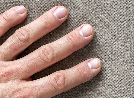 Common Nail Conditions That May Require Treatment