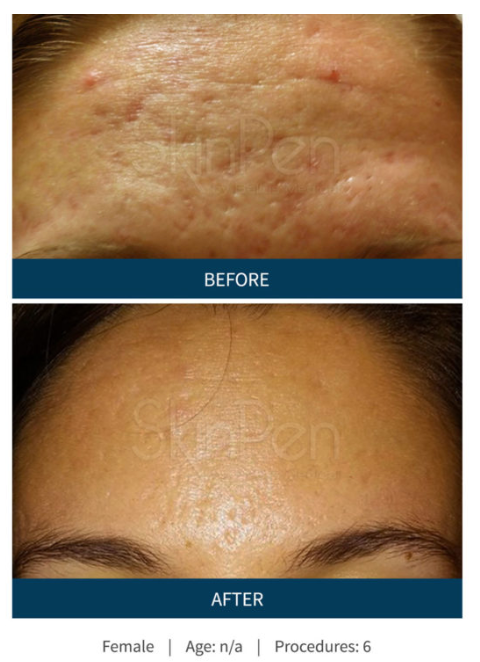 Skinpen before after.png