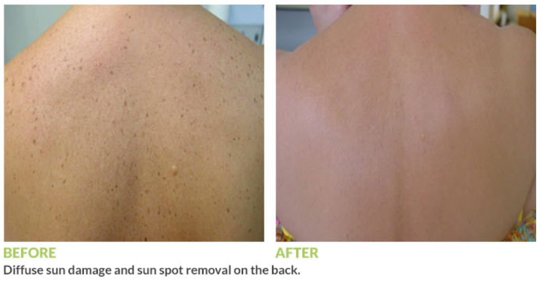 GentleMax Pro sun damage before and after
