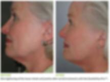 gentlemax pro skin tightening.png
