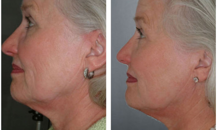 GentleMax Pro skin tightening before and after