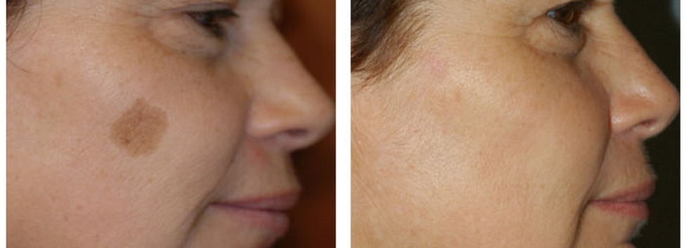 GentleMax Pro sunspot before and after