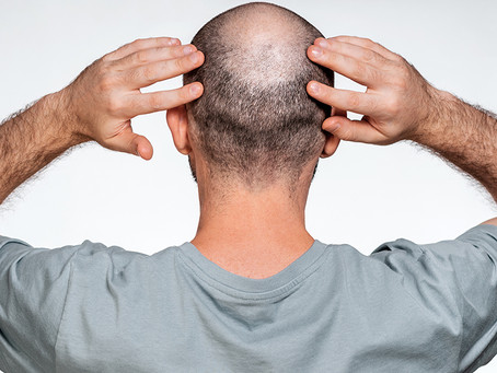 Types of Non-Scarring Hair Loss