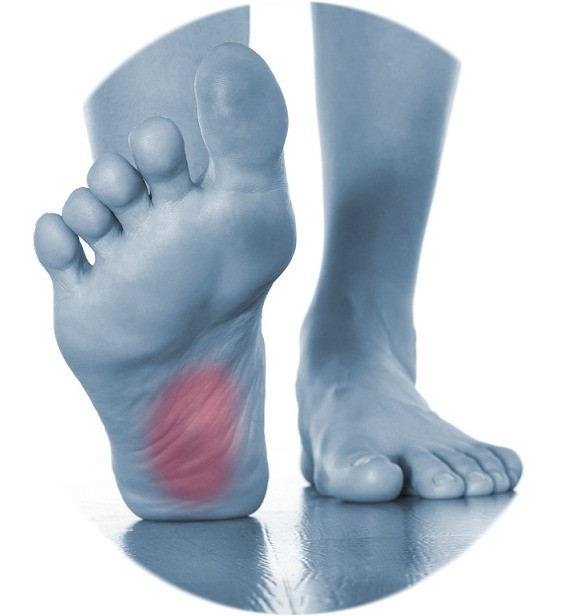 Plantar Fasciitis treatment in Cary